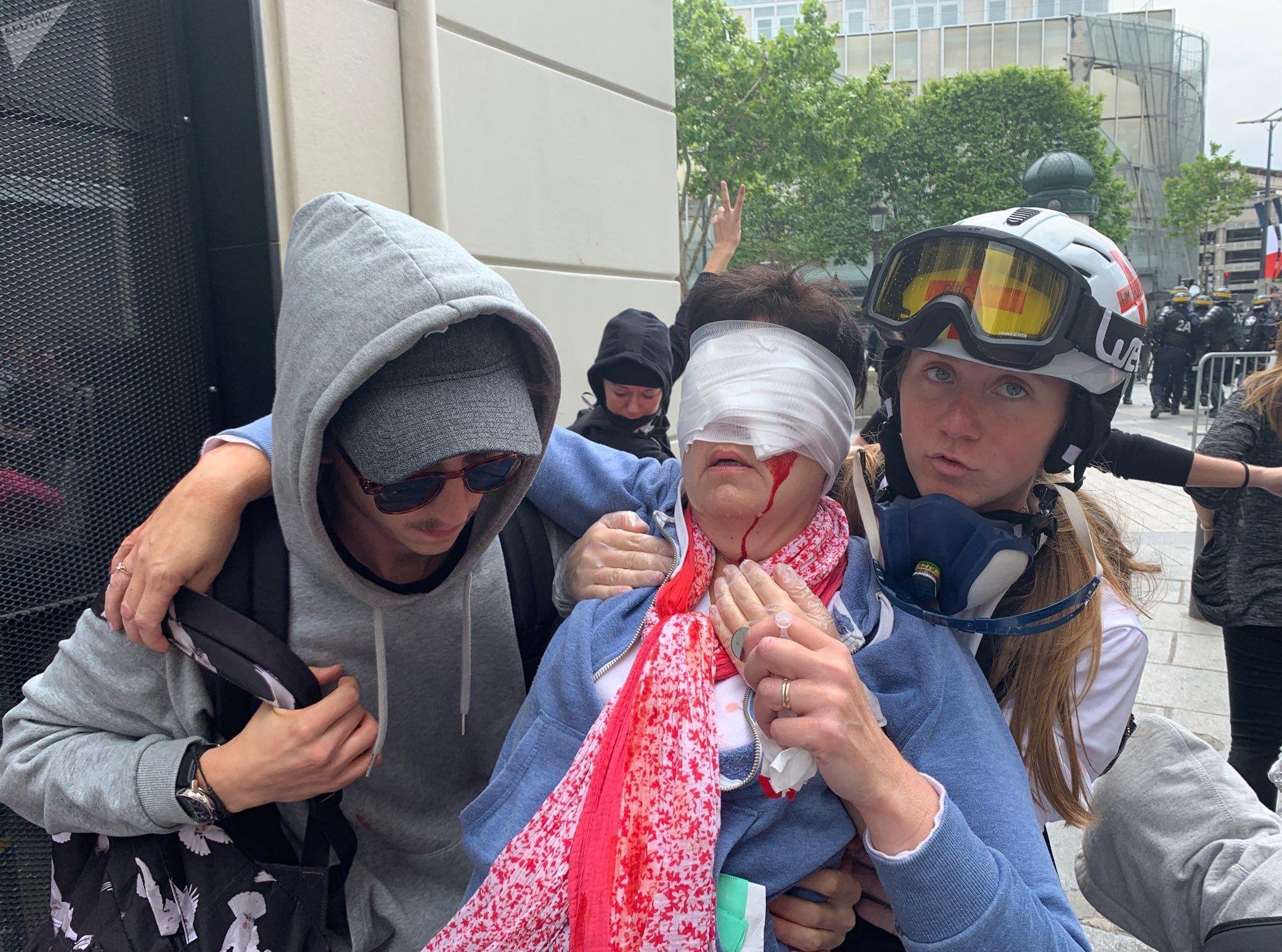 Femme blessée au visage le 14 juillet à Paris