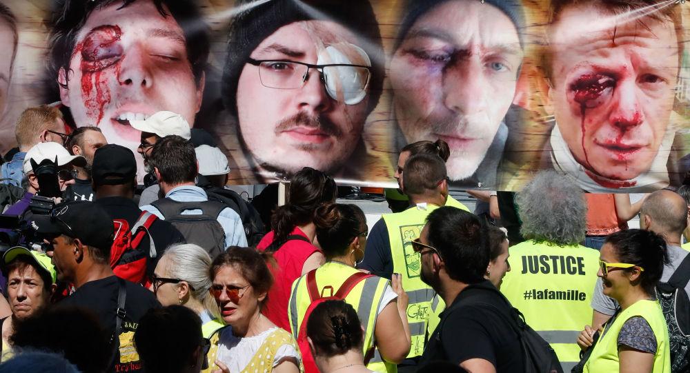 des photos des personnes éborgnées par un tir LBD