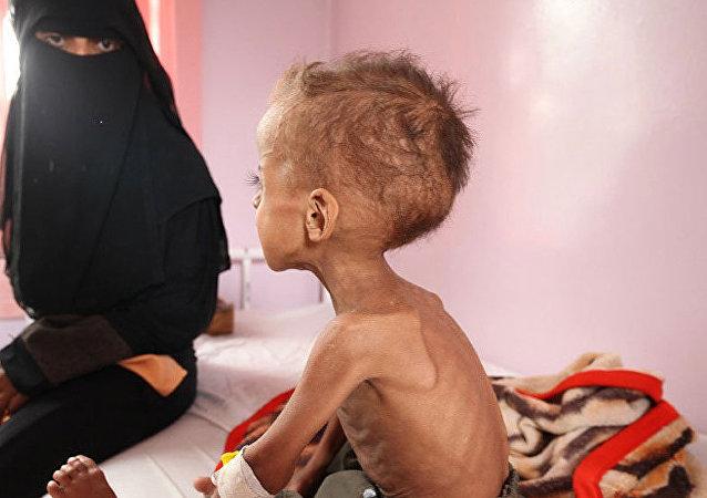 Les enfants yéménites sous-alimentés à cause de l'opération saoudienne
