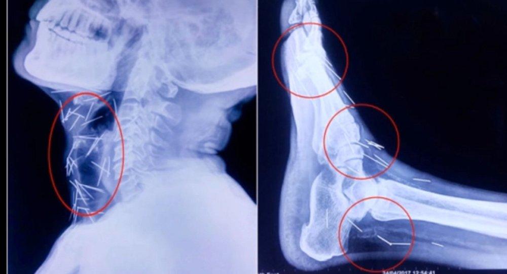 Les médecins découvrent dans son corps… 75 aiguilles!