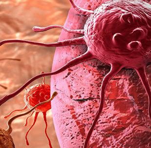 Cellules cancereuses