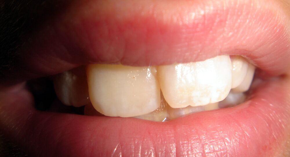 Dents (image d'illustration)