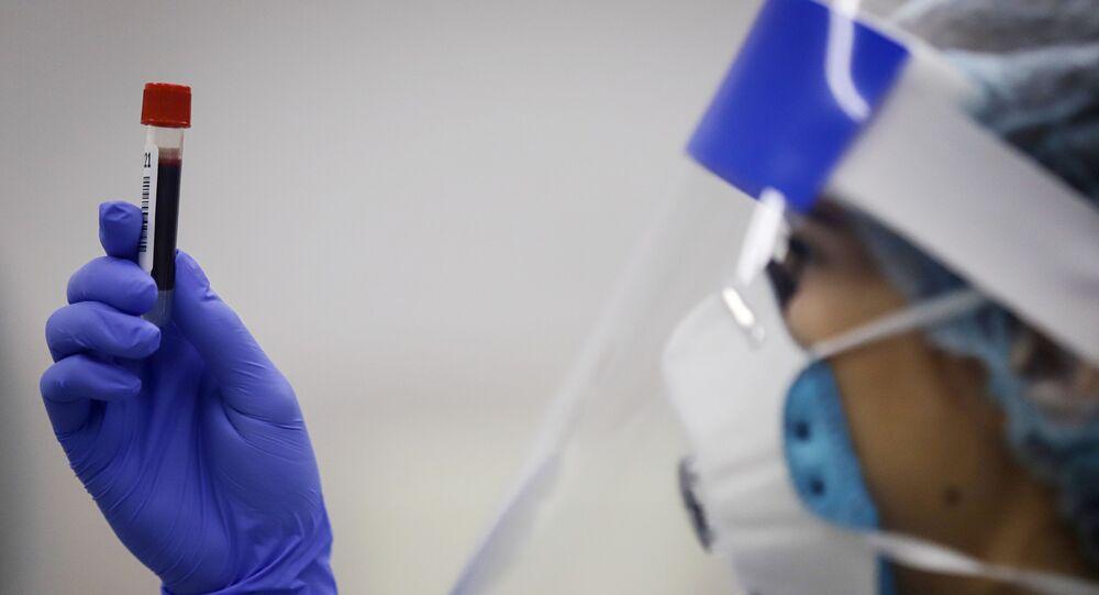 Un test pour détecter des anticorps contre le Covid-19