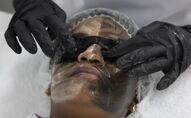Traitement blanchissant de la peau