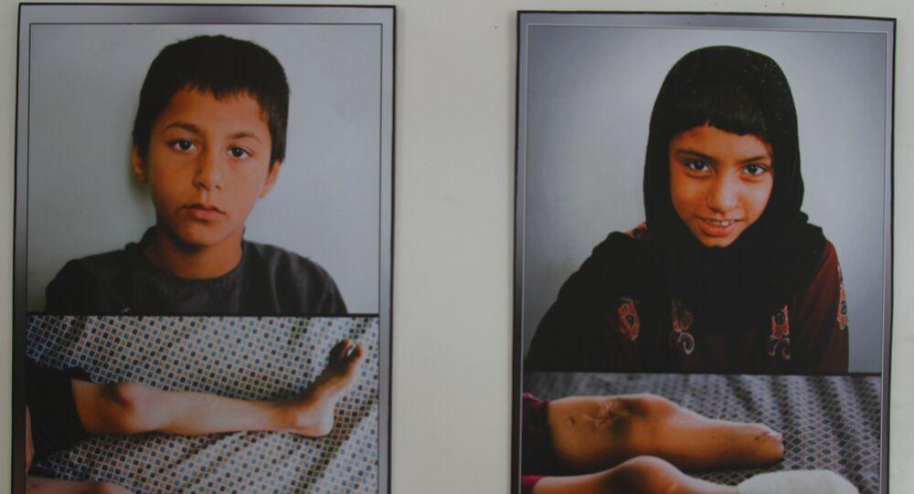 Les cicatrices de la guerre. L'Anatomie de l'Afghanistan en images