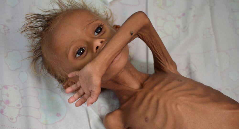 enfants au Yémen