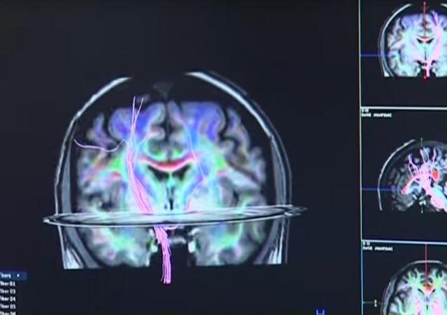Les médecins de Novossibirsk peuvent voir vos pensées
