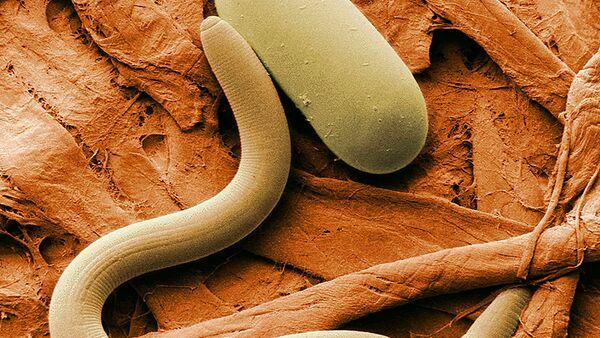 Soybean cyst nematode and its egg - Sputnik France