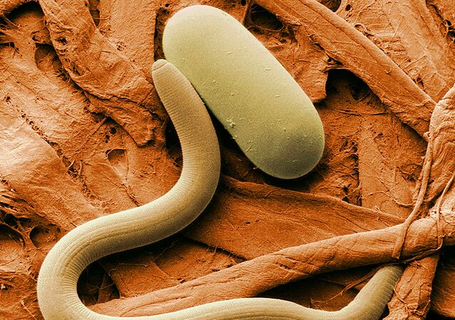 Soybean cyst nematode and its egg