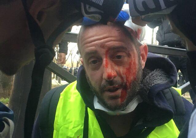 Un manifestant blessé lors de l'Acte 14 des Gilets jaunes à Paris