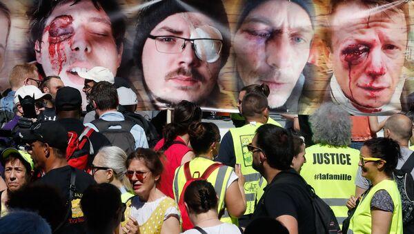 des photos des personnes éborgnées par un tir LBD - Sputnik France