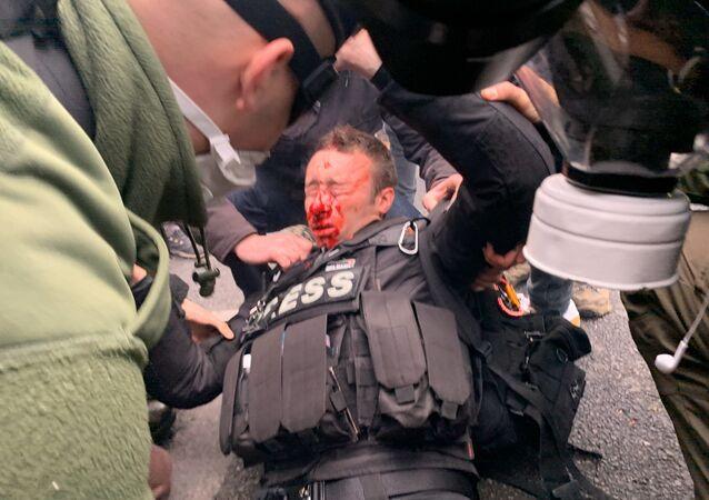 Journaliste blessé au visage pendant l'acte 53 des gilets jaunes, le 16 novembre 2019