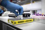 Pruebas de laboratorio para detectar coronavirus