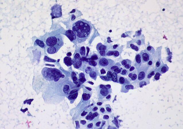 Cancer du poumon (image d'illustration)